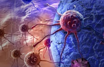 Krebszellen: noch immer ist Krebs die häufigste Todesursache